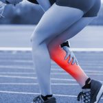 How to Stop Leg Cramps: Remedies for Relief