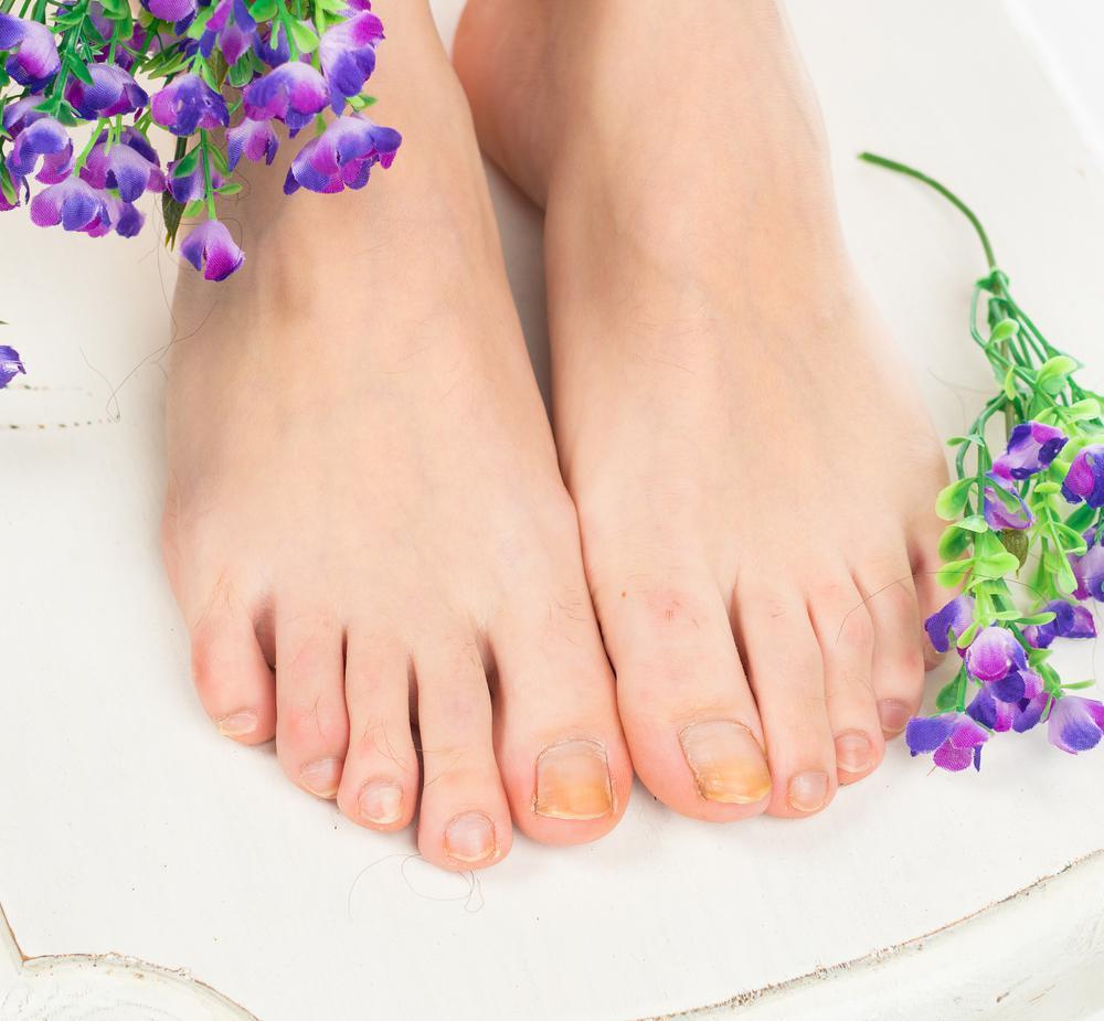Nail Fungus Causes