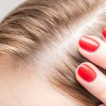 9 Useful Home Remedies To Regrow Hair On Bald Patches