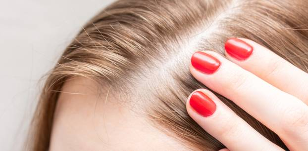 Regrow Hair On Bald Patches
