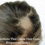 Infections That Cause Hair Loss: Ringworm(Scalp) and More