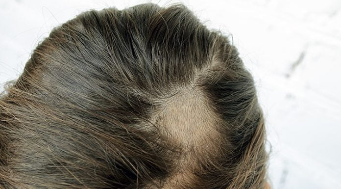 Infections That Cause Hair Loss: Ringworm(Scalp)