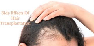 Side Effects Of Hair Transplantation