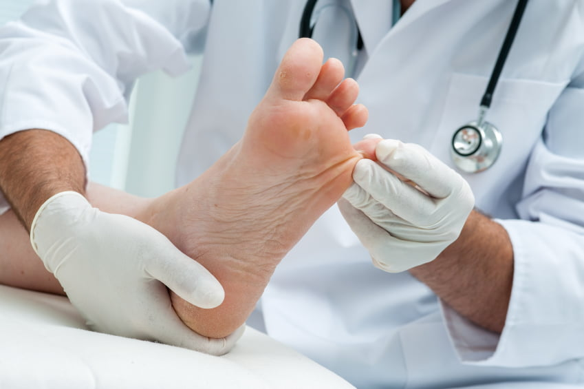 What Is Athlete's Foot