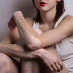 Vitiligo Symptoms, Causes and Treatment