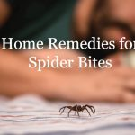 7 Home Remedies for Spider Bites