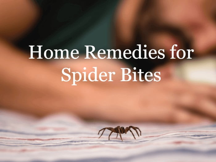 Home Remedies for Spider Bites