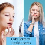 The Difference Between Canker Sores and Cold Sores