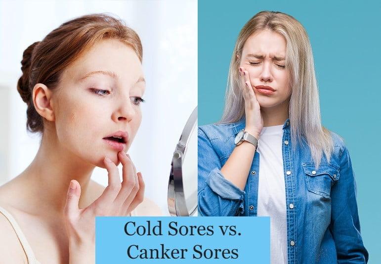 Cold Sores vs. Canker Sores